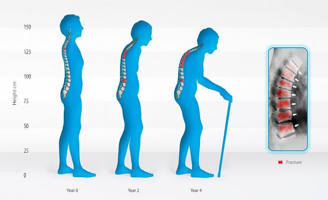 What is osteomalacia?